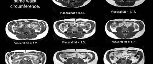 The Age of Metabolic Syndrome – Inflammatory Fat Is Worse Than Obesity